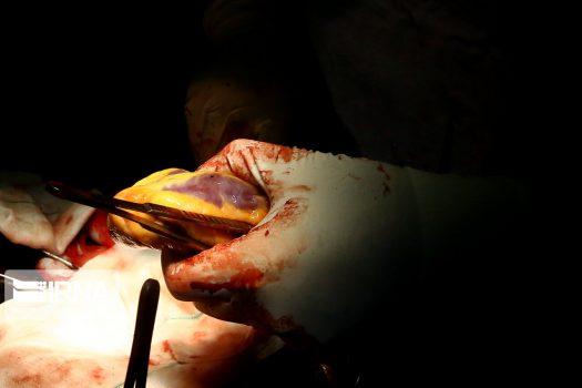 هر دو ساعت یک بیمار نیازمند عضو جان خود را از دست می دهد